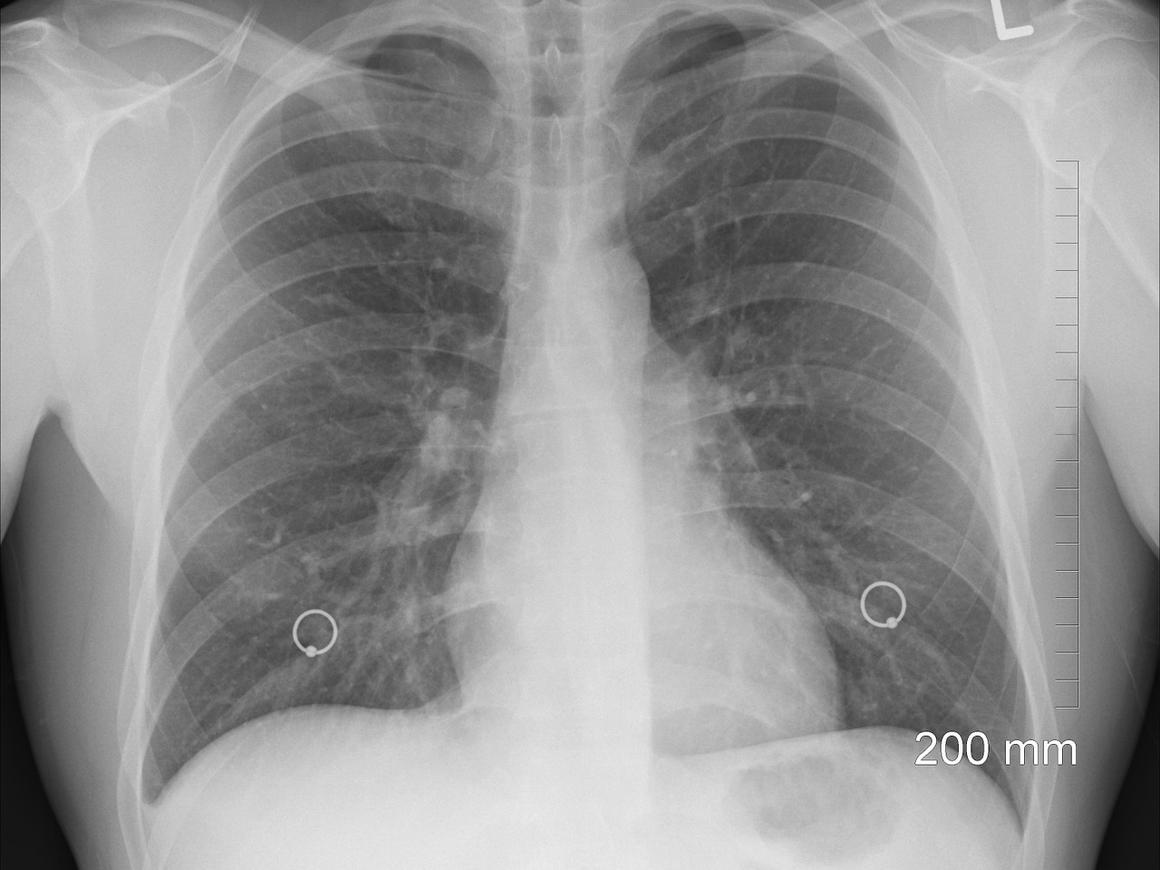 Само пройдёт: в Китае мужчина прожил год с ложкой в горле (фото)