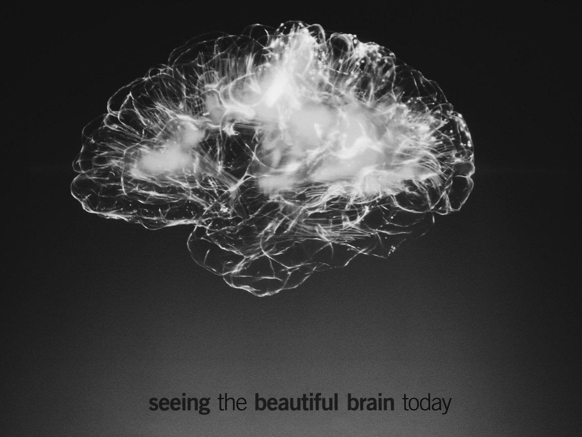 Мысли о самоубийстве можно выявить при МРТ