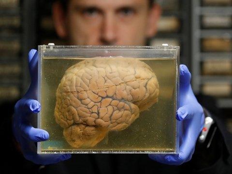 Илон Маск создал новый стартап и полез с ним в мозг (фото)