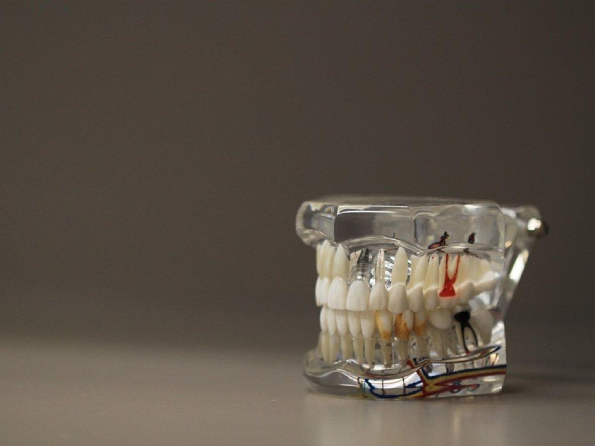 Разрушающиеся зубы можно восстановить. Но это не повод запускать их здоровье