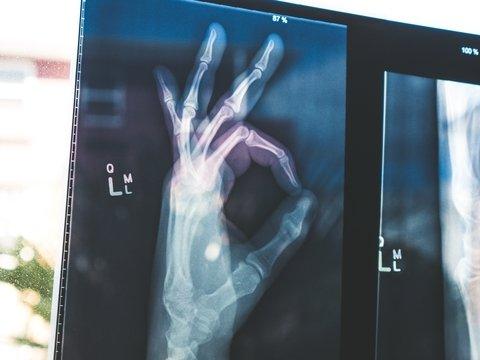 Во Франции не хватает врачей, и правительство запретило гражданам болеть