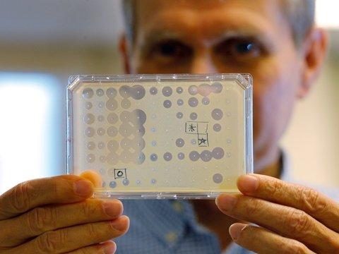 Искусственный интеллект создал антибиотик, которого боятся смертельные вирусы